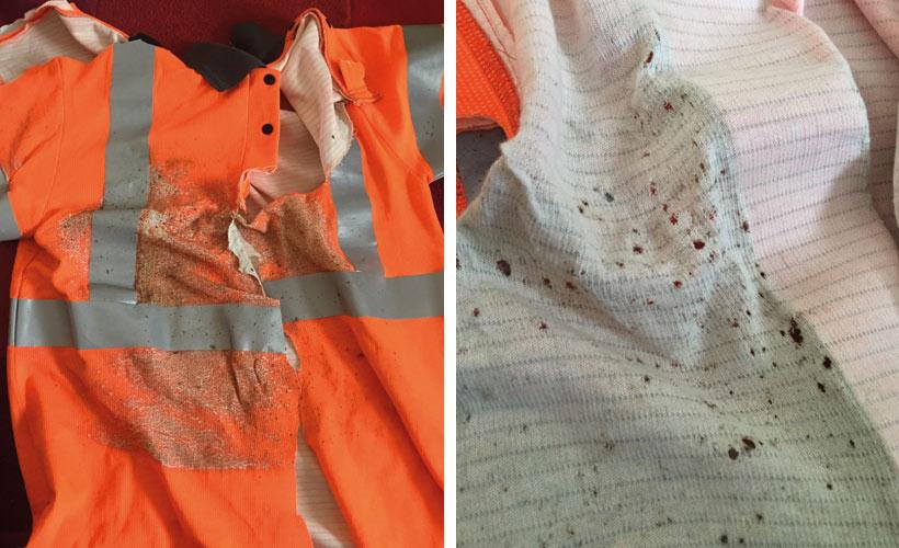 Arc Flash Accident PPE